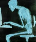Hunched Posture on Computer